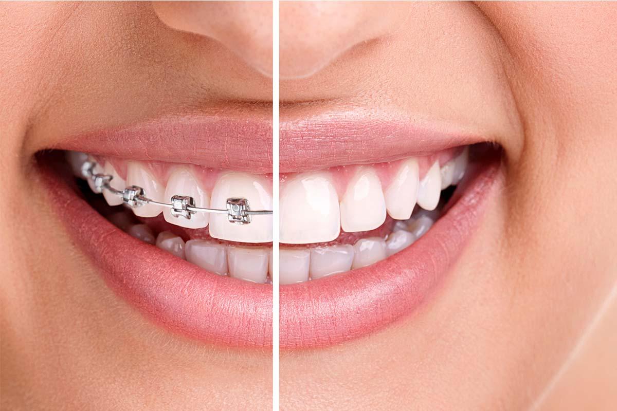 Mississauga Orthodontics