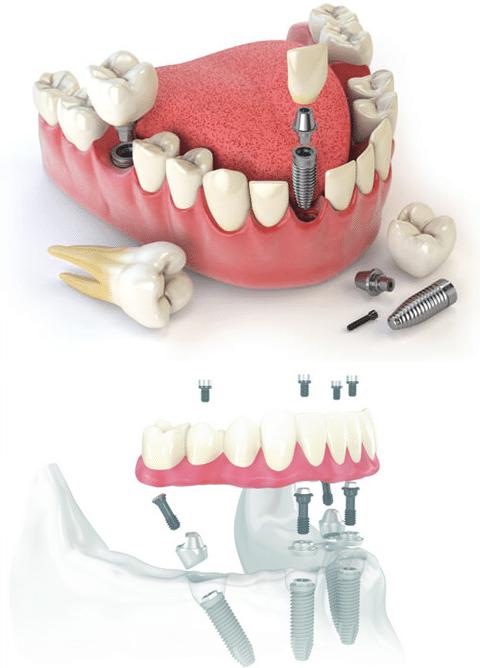 all on 4 dental implants Mississauga