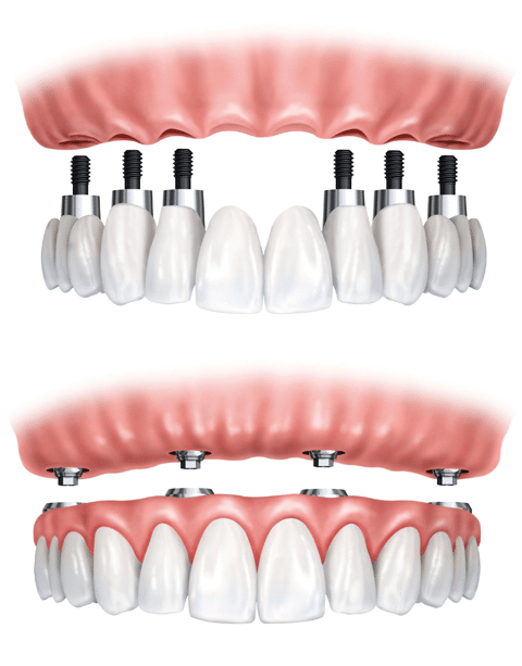 Implant-supported dentures Mississauga