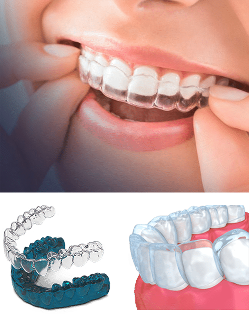 Invisalign Clear Braces Mississauga