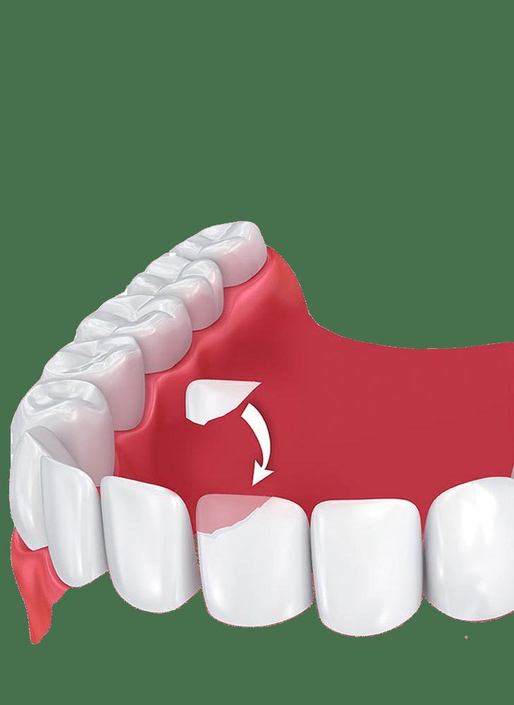 cosmetic dental bonding Mississauga