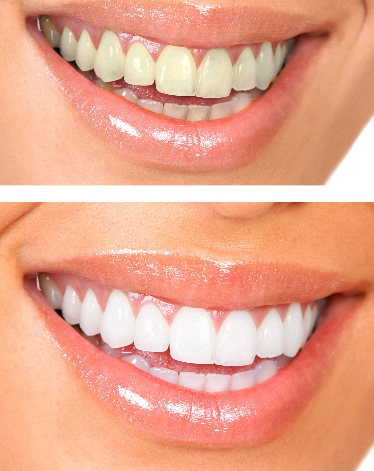 Teeth Whitening in Mississauga, ON