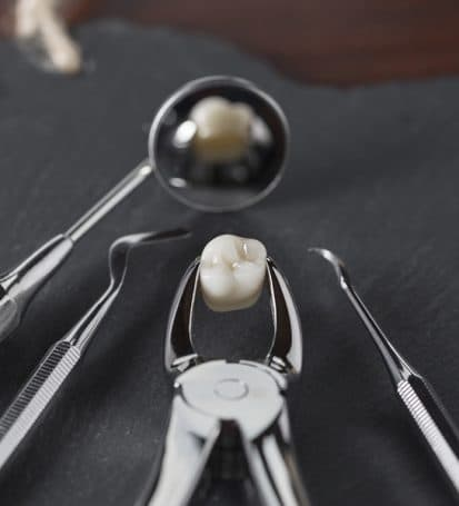 Dental extractions mississauga