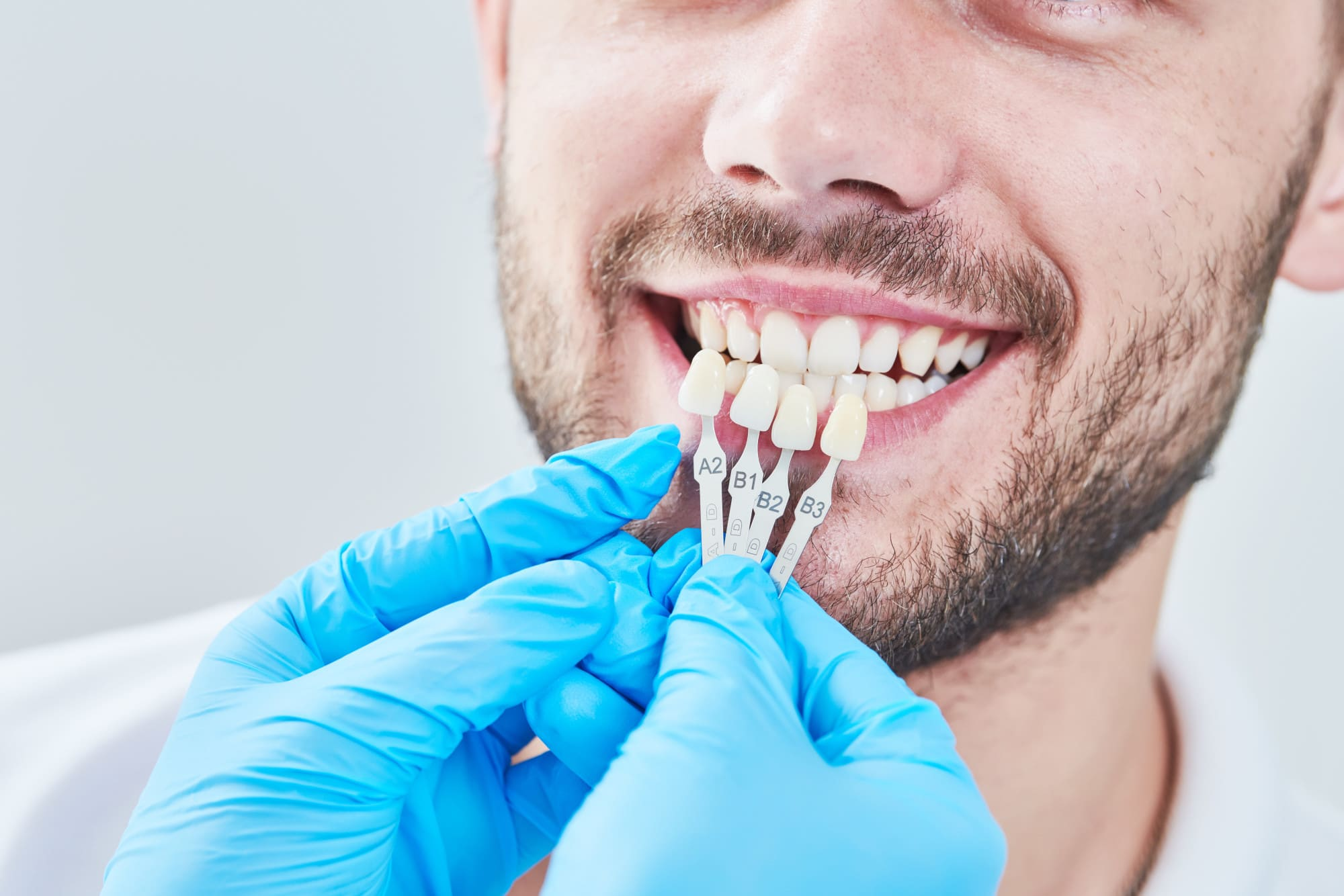 Tooth Sensitivity After a Crown Replacement: Everything You Need to Know