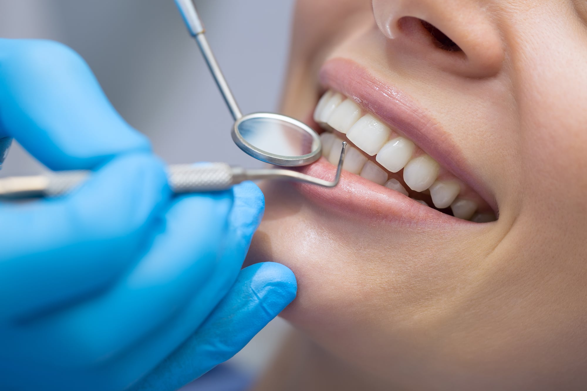 What You Should Know About Periodontal Disease